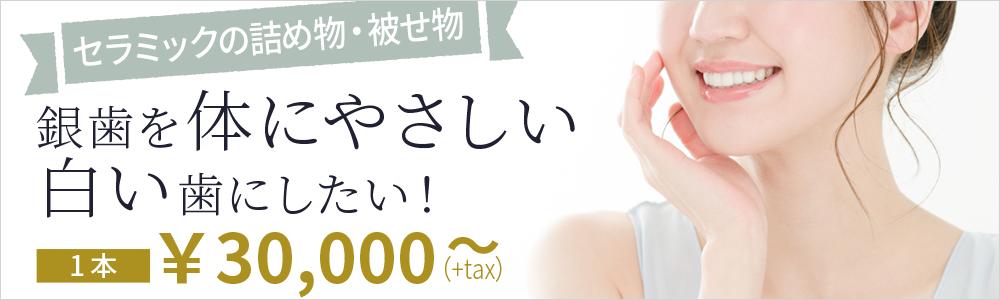 銀歯を体にやさしい白い歯に!セラミックのつめ物1本30,000円~