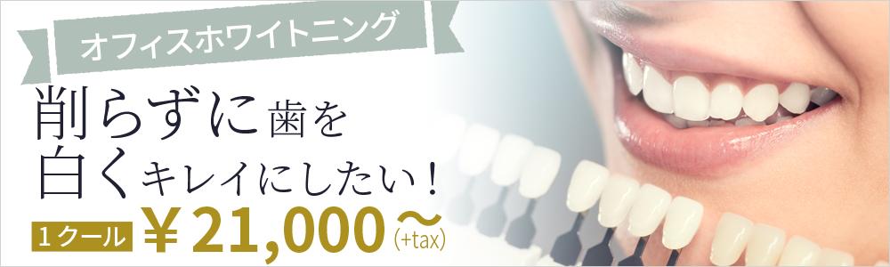 削らずに歯を白くキレイにしたい!ホワイトニング1クール21,000円~